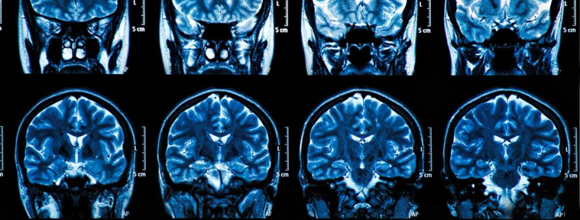 Изменение головного мозга при магнитно-резонансной томографии у пациента с коронавирусной болезнью 2019 (COVID-19) и аносмией