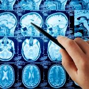 МРТ диагностирует причину болезни Альцгеймера