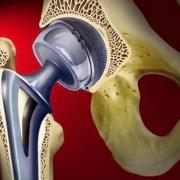 Протезирование тазобедренных суставов