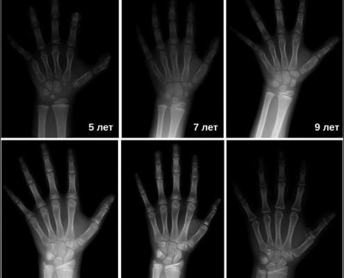 Методики определения костного возраста