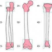 Классификации переломов трубчатых костей