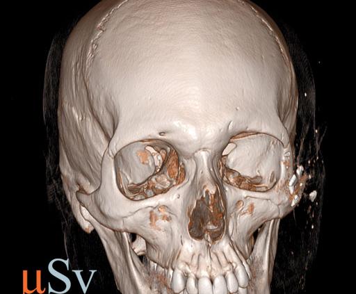 инородные тела мягких тканей лица