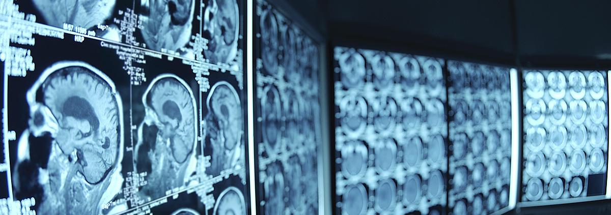 Радиационная защита рентгенкабинета